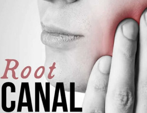 The Truth about Root Canals